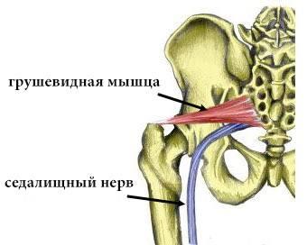 Пириформис симптомы и лечение